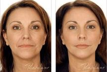 Injectable Cosmetics / All kinds of injectables to make you beautiful!