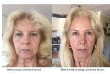Jeunesse - Instantly Ageless, řada Luminesce, Reserve,... / Revoluční omlazující kosmetika a potravinové doplňky, ktreré dokáží umazat léta nejen viditelných známek stárnutí, ale také zlepšit celkové zdraví.