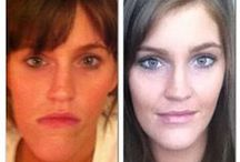 Orthognathic Surgery / Everything about Double Jaw Surgery / Orthognathic Surgery