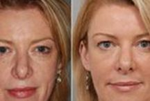 Sculptra Aesthetic – Before & After / If you are a patient looking for gradual, long lasting anti-aging results, Inverness Dermatology offers sculptra aesthetic. If you are a patient in the Hoover, Birmingham, or Chelsea, Alabama areas, check out Inverness Dermatology Sculptra Aesthetic before and after pictures to see the talented work of Dr. Jacobson and Dr. Marks.