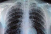 I studied radiography&radiotherapy / ~ Funny and also educational stuff adout radiography&radiotherapy ~
