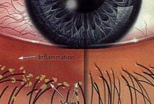 Dry Eye Treatment / How to treat the symptoms and causes of Dry Eyes