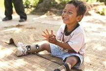 Transforming Kids Lives / cbm Canada brings hope and healing to children living in poverty with a disability, in the poorest countries of the world.  Transforming lives by valuing everyone as Jesus does.
