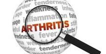 Arthritis: Its Effects & Treatment / Dr. Alex Jimenez Discusses Living with Arthritis and its Treatment Options.