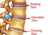 lumbalgia, herniated disk and others