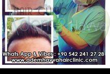 Saç Ekimi - Hair Transplant / Saç Ekimi - Sakal Ekimi - Kaş Ekimi - Hair Transplant - Hair Implant - Hair Restoration - Beard Transplant - Eyebrow Transplant