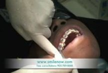aloha-orthodontics.com / Many individuals struggle with crowding, stuck out teeth, underbites, crossbites, overbites and other types of placement troubles. In such cases, Braces are usually chosen to use to deal with the various abnormalities of the teeth.