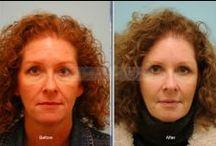 Facial Rejuvenation  / Facial Rejuvenation