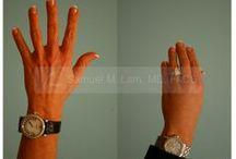 Hand Fat Grafting / Hand Fat Grafting