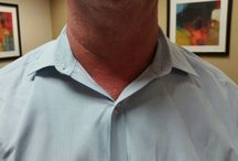 Droopy and Saggy Collars