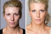Injectable Treatments / Non-surgical, cosmetic procedures such as Anti-Wrinkle muscle relaxing injections and dermal fillers. They provide the most advanced and safe non-surgical procedures that are clinically tried and tested. Anti Wrinkle and Dermal Filler Injections are performed by medical doctors using Allergan and Q-Med products.
