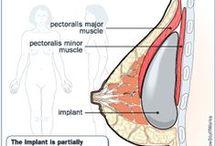 Plastic Surgery Infographics