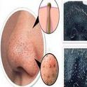 Como Eliminar Cravos e Espinhas - Acabe com a Acne e Pontos Pretos do Rosto / Conheça os tratamentos caseiros para acabar com os cravos e espinhas. Dicas Para Eliminar os Cravos Naturalmente, Cravos e Espinhas.Tanto espinhas quanto os cravos podem ocorrer por muitas razões, como por exemplo, bactérias, mudanças hormonais. Confira alguns tratamentos naturais para eliminar cravos e espinhas.