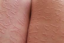 Dermatographic Urticaria Sufferers
