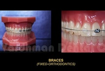 Orthodontics @ VDC / Irregular/crooked/spaced-out teeth : 'Before & After' pictures of some of our clinic's cases.