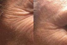 Facial y corporal / Visible desde la primera sesión