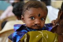 Free Cleft Surgery / Free Cleft Lip Surgery in Bangalore India by http://trinitycarefoundation.org/ / by Ruth Job