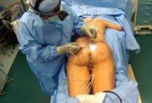 Dr. Wilberto Cortes Patients/Pacientes / Live Surgery videos of Dr. Cortes Patients