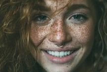capTAIN'$.... Freckle FACE i LoVe YoU / Freckles and more Freckles please