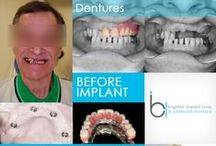 Before and After Dental Implants / A beautiful smile can change a persons life.Perfect teeth can give you more confidence, and make conversations more enjoyable. Dental Implants can transform any smile to a beautiful smile.