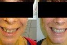 Orthodontic Treatment At Brighton Implant Clinic / Orthodontic Treatment