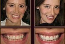 Dental veneers/ Fogászati héjak / Veneers and lumineers at modern dentistry. / Porcelán és direkt héj a modern fogászatban./
