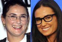 Celebrity Smile Transformations