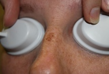 Age spot removal before and after