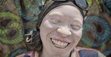 Ana Palacios tanzania / Ana Palacios odwiedziła Tanzanię, gdzie istnieję przytułki dla dzieci cierpiących na albinizm.