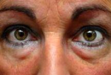Beauty - baggy under eyes and dark circles