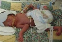 premature babies 25 - 28  weeks / premature baby premature babies 25 - 28  weeks tiny  babies born early