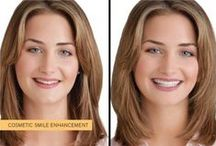 Snap On Smile / The revolutionary system from the states. No Drilling! No Injections! 2 simple appointments!