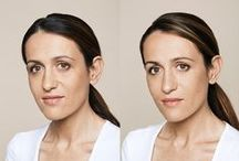 Restylane People / Her kan du se eksempler på behandlinger med før og etter-bilder