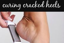 Cracked Heels All-Natural Remedies / Cracked Heels All-Natural Remedies
