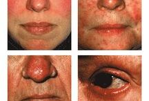 Subtypes of Rosacea / The four standard subtypes of rosacea as identified by a consensus committee and review panel of 17 medical experts worldwide. Learn more at www.rosacea.org. / by National Rosacea Society