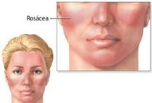 "Rosacea Basics / Rosacea (pronounced ""roh-ZAY-sha"") is a chronic and potentially life-disruptive disorder primarily of the facial skin, often characterized by flushing, persistent redness, bumps and pimples and visible blood vessels. Learn more at: www.rosacea.org / by National Rosacea Society"