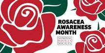 Rosacea Awareness Month / April is Rosacea Awareness Month. Use this board to share your rosacea-related pins, including tips, selfies and anything that may help spread awareness and understanding to the estimated 16 million Americans who suffer from this chronic skin disorder. Promotions of commercial products will be removed by the moderator.
