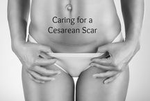 Caesarean Birth / Maybe you had a planned caesarean birth, or perhaps it was unexpected. In either case, there are things you should know about the birth and the recovery.