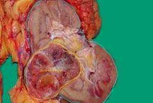 Καρκίνος νεφρού / http://urol.gr/commondiseases/renal-cancer