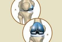 Partial Knee Replacement Surgery In India / Partial knee replacement surgery India is in great demand as the surgery is carried out in highest standards with lowest price and the medical tourism company Joint replacement surgery hospital India allows to avail a genuine, comfortable and luxurious tour.