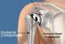 Shoulder Joint Replacement Surgery India / Shoulder joint replacement surgery is done to replace bones of shoulder joint with artificial joint implants. Meditrina Hospital in India providing best shoulder implants in India.