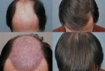 Hair Transplant / Hair transplant surgery in New Delhi, India.