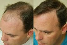 Hair Transplant In Chandigarh