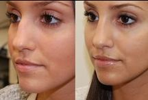 Rhinoplasty In Chandigarh