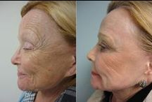 Laser Resurfacing with Co2 Fractional Laser / Laser Resurfacing for Brown Spot Reduction, Wrinkle Reduction and Skin Tightening at Truth + Beauty Medical Spa, Roslyn, New York, Long Island. Lumenis Accupulse http://truthandbeautyspa.com/behind-the-science/co2-laser-resurfacing/