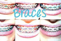 Braces are fun! / Changing your color ties and power chains can be fun! Pick them according to the season and holidays
