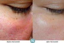 Beautiful You Beautiful Me / Anti-aging for your skin, your body and your brain. Nerium International.
