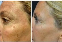 Brown spots / Forever Young BBL is the latest technology to remove brown spots and age spots. It can also help reduce fine lines and wrinkles, improve tone and texture of the skin as well as target reds in Rosacea.
