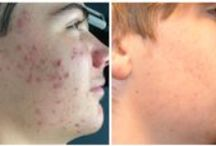 Acne / Various treatments for active acne and acne scars