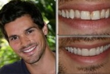 Before-and-Afters / These are all copyrighted actual patients of Smile South Florida Cosmetic Dentistry's Dr. Charles Nottingham.